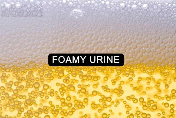 Foamy Urine bubbles