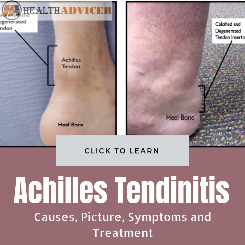 Achilles Tendinitis Causes and treatment