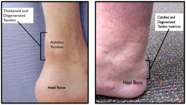 Achilles Tendinitis affected legs