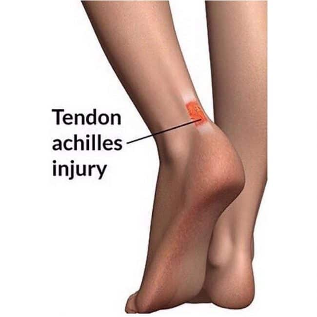 Achilles Tendinitis injury