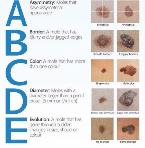 ABCDE of melanoma
