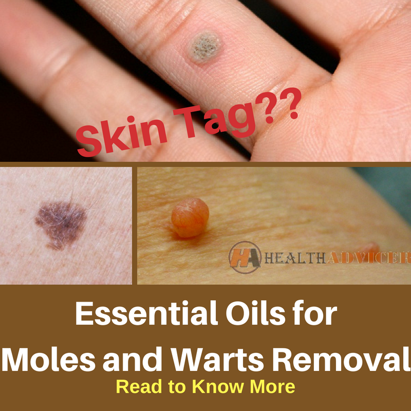 How To Use Essential Oils for Moles and Warts Removal
