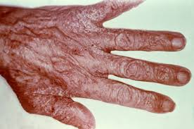 scabies infected hand