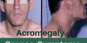 Acromegaly : Causes, Picture, Sign, Symptoms and Treatment