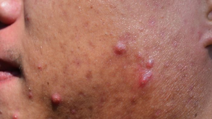 Cystic_acne
