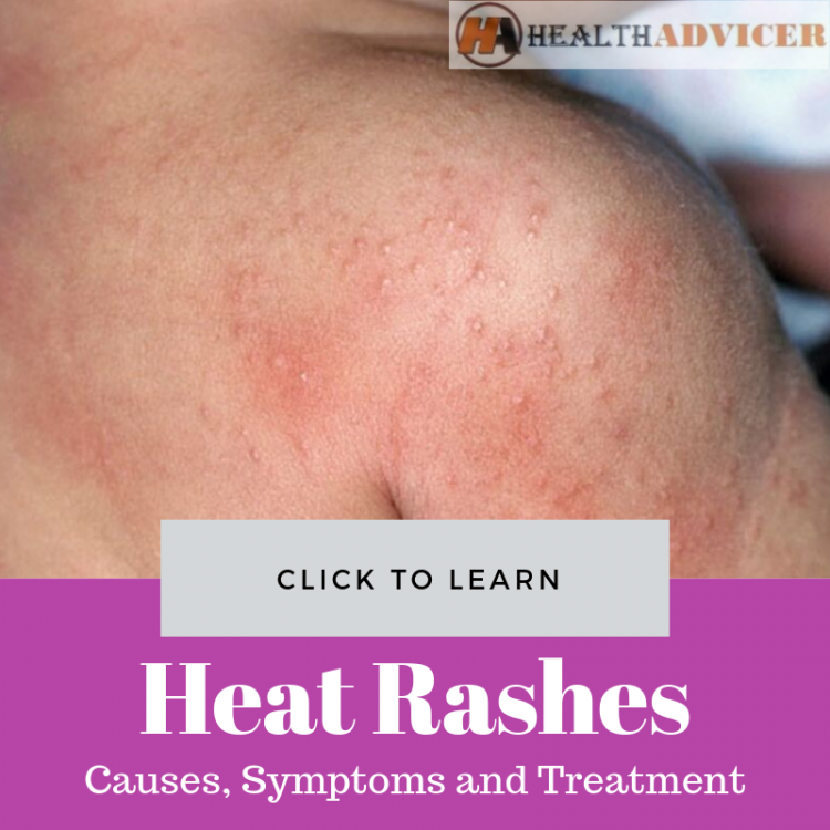 Heat Rashes