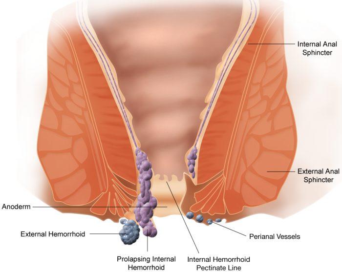 hemorrhoide