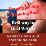 Sun Poisoning Rash