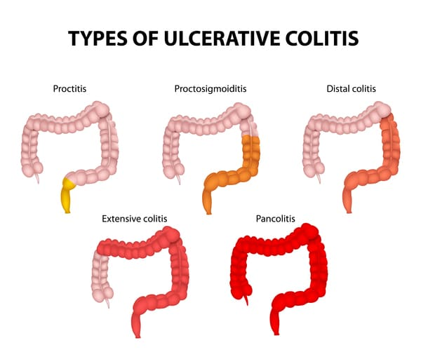 Type of ulcerative