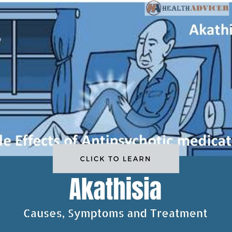 Akathisia Causes Treatment
