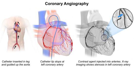 Coronary Angiogram