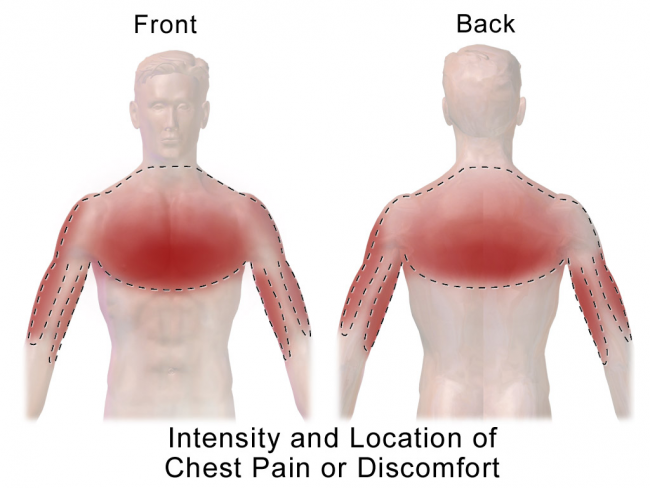 Typical Chest Pain Symptoms