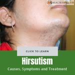 Hirsutism Causes Treatment