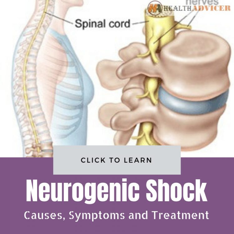 Neurogenic Shock Causes Treatment