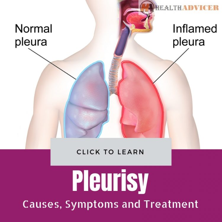 Pleurisy Causes Treatment