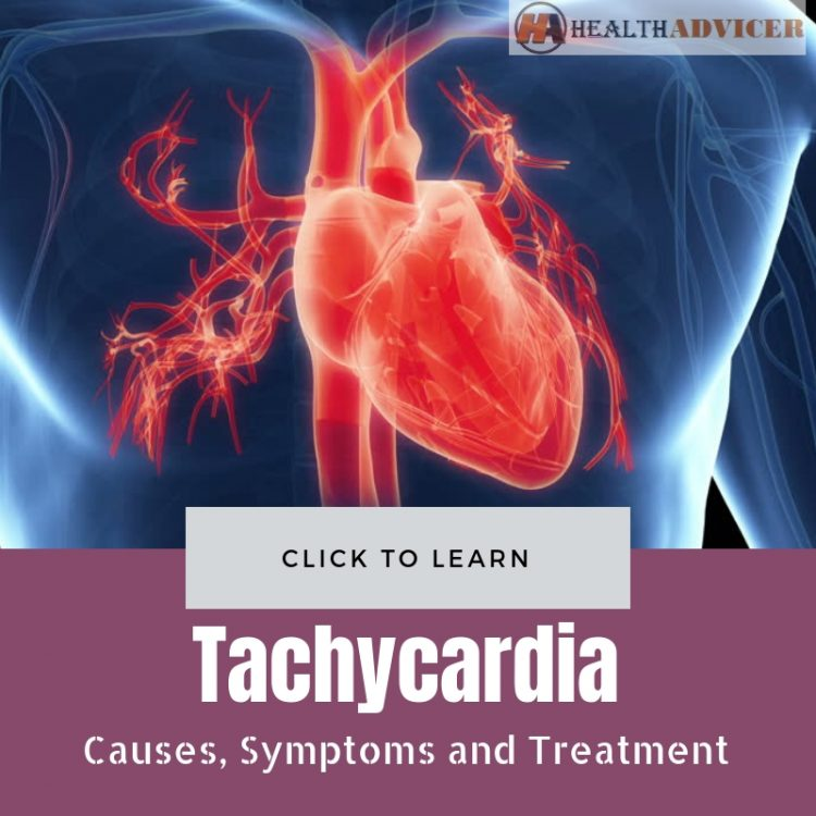 Tachycardia Causes Treatment