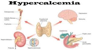 Hypercalcemia