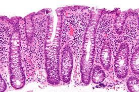 What Is Lymphocytic Colitis