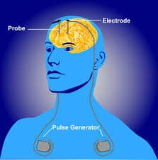 Implantable Stimulators