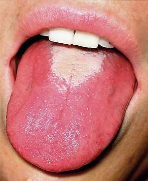Chronic Glossitis