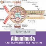 Albuminuria Causes Treatment