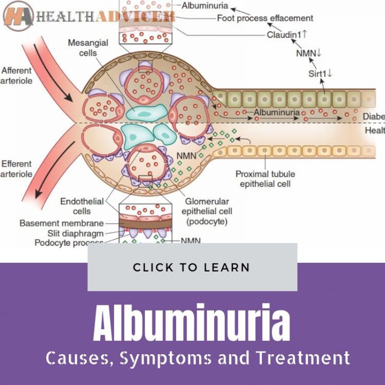 Albuminuria Causes Treatment