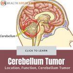 Cerebellum Tumor