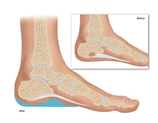 Functional Orthotic Device