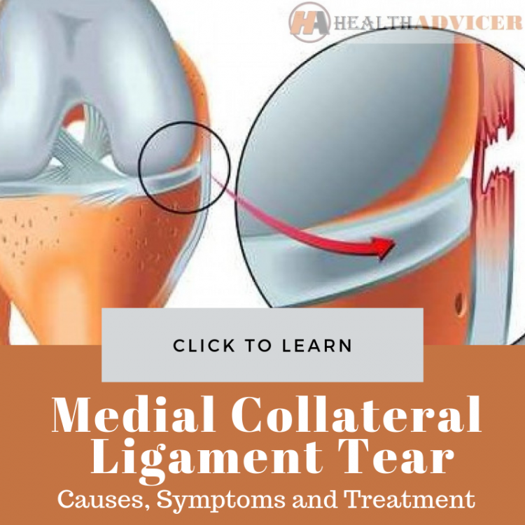 Medial Collateral Ligament Tear