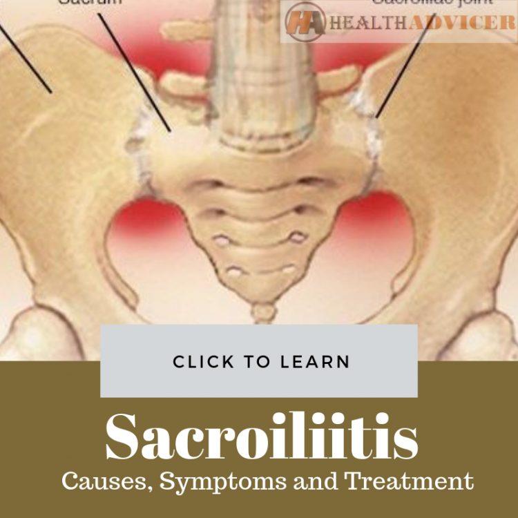 Sacroiliitis Causes Treatment