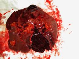 Ruptured (Lacerated) Spleen