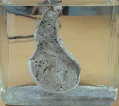 Testicular teratoma