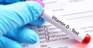 VITAMIN D DEFICIENCY DIAGNOSIS
