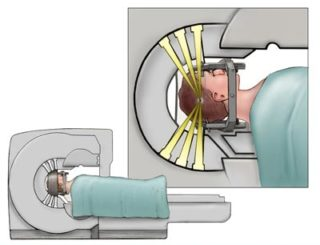 Stereotactic Radiosurgery