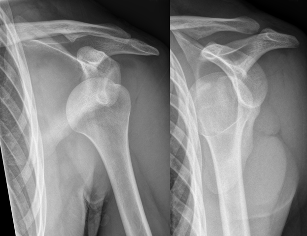 Shoulder Instability/Dislocated Shoulder