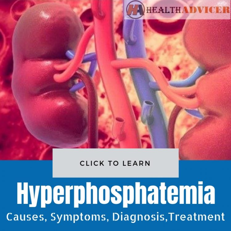 Hyperphosphatemia Causes and Treatment