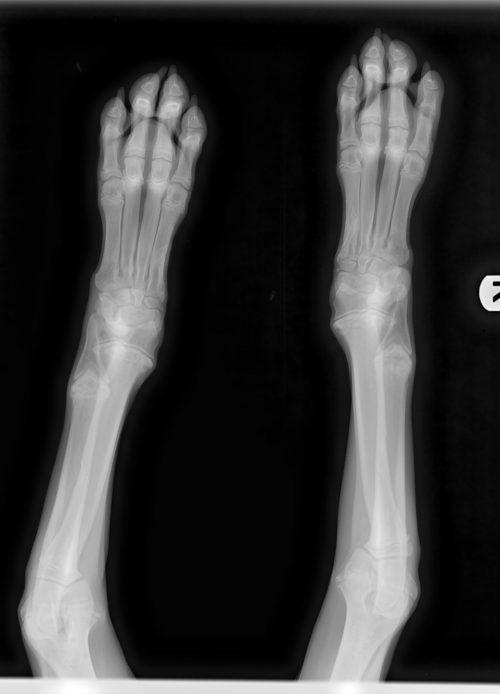 Osteodystrophy