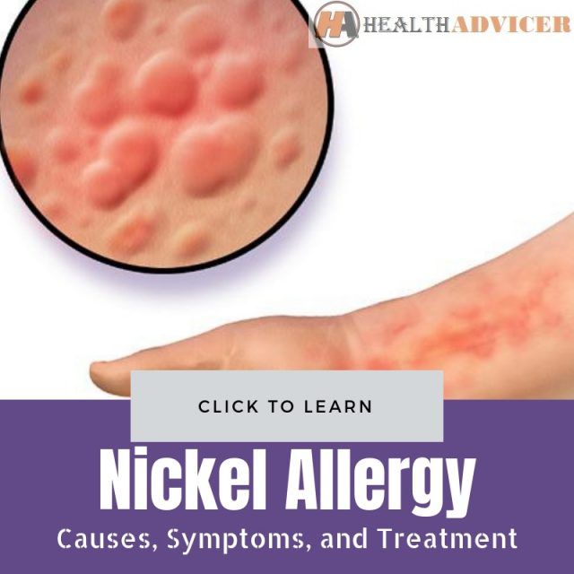 Nickel Allergy Pictures