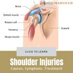 Shoulder Injuries Causes Treatment