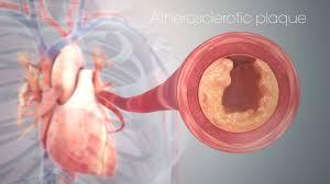 Microvascular Disease