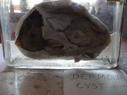 Periorbital Dermoid Cyst