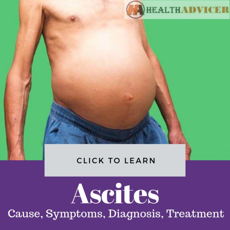 Ascites Picture