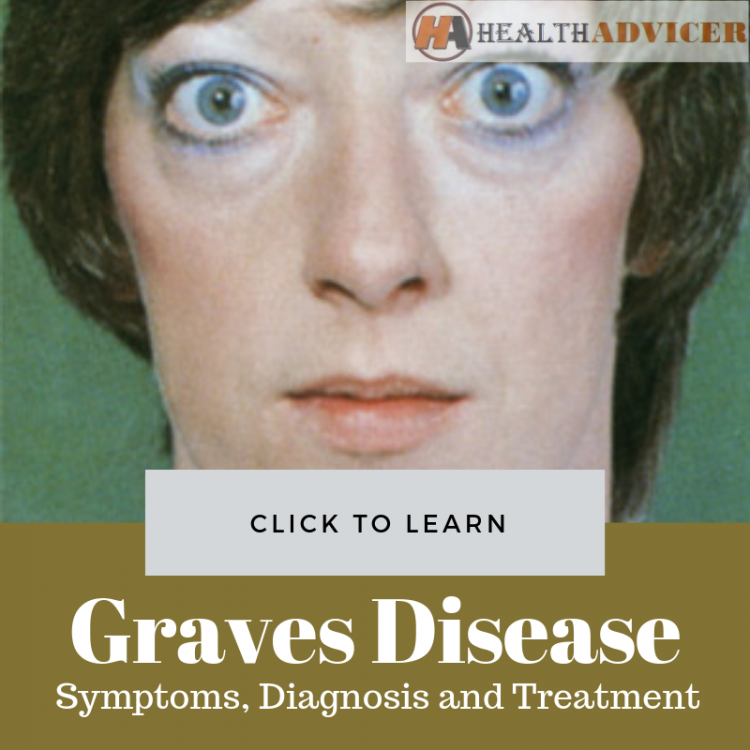 Graves Disease Picture