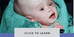 Hydrocephalus Causes Treatment