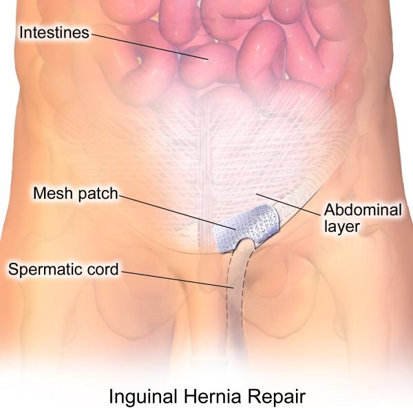 Inguinal Hernia Treatment Options
