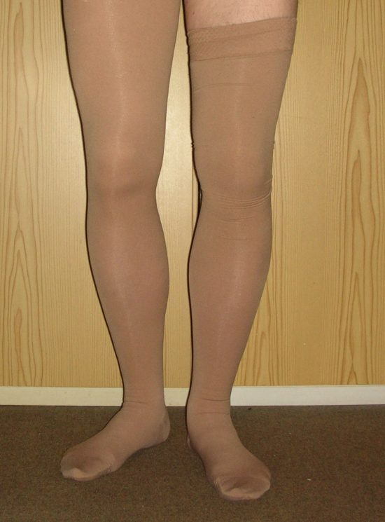 External Compression Stockings