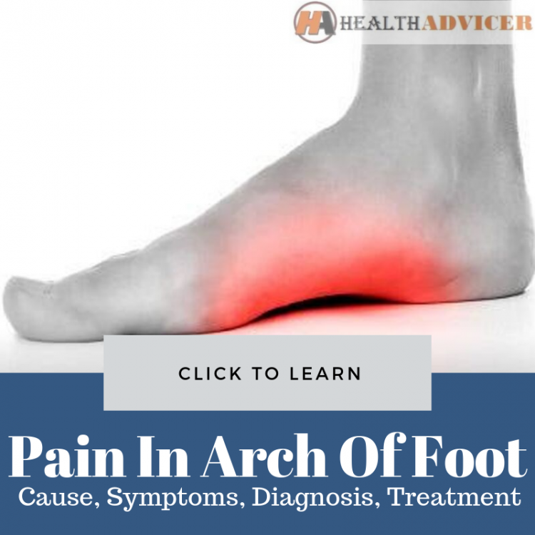 Pain In Arch Of Foot Picture