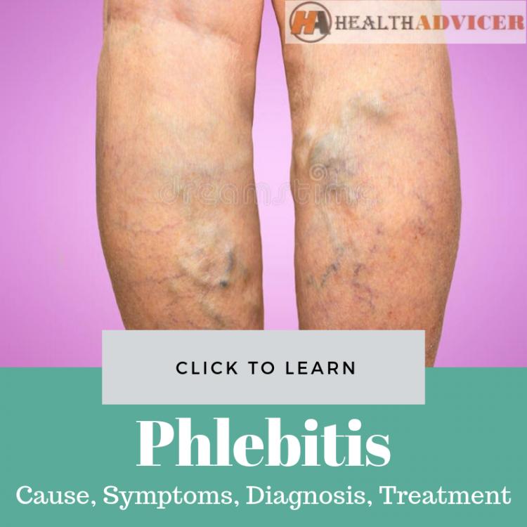 Phlebitis Picture