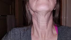 Difficulty in swallowing