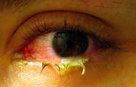 Viral And Bacterial Conjunctivitis